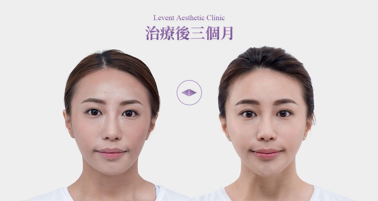 隨年齡增長,臉部因老化所造成的體積流失,讓臉的輪廓逐漸母湯該怎辦?順風美醫改善雕塑輪廓線條,若你剛好有局部肥胖問題,更可提取局部脂肪作回填,一舉兩得。醫美推薦,順風美醫診所