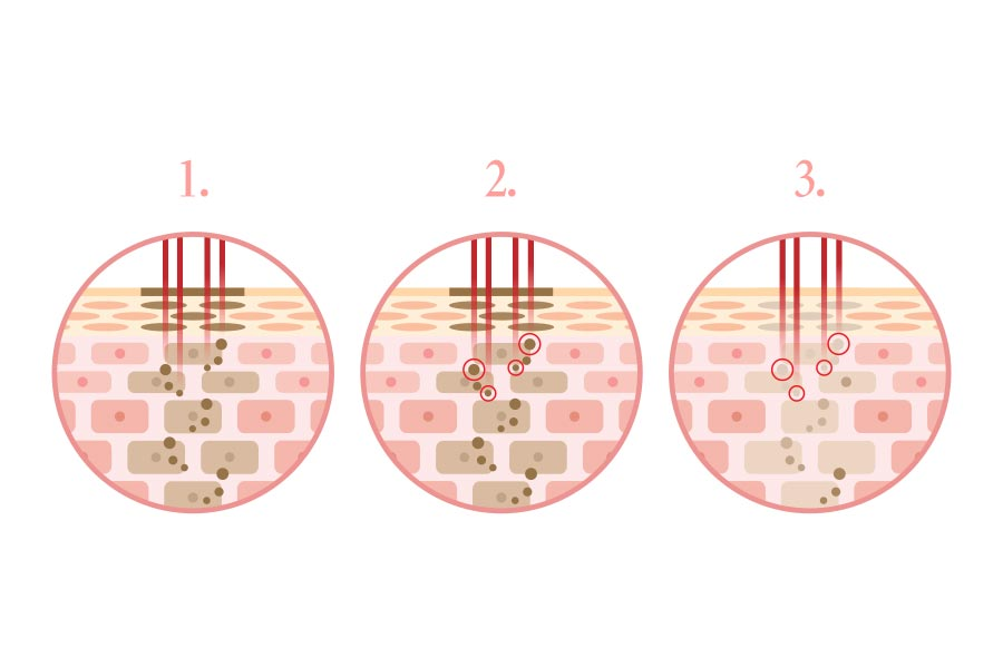 淨膚雷射、光纖雷射,長期深受斑點、粉刺、毛孔粗大及細紋的困擾,尤其陽光下臉上缺點更加明顯,即使蓋了厚厚的粉,仍然蓋不住該怎麼辦?順風美醫專業團隊淨膚雷射改善肌膚色澤、抑制出油與縮小毛孔的功效。順風美醫診所,醫美推薦