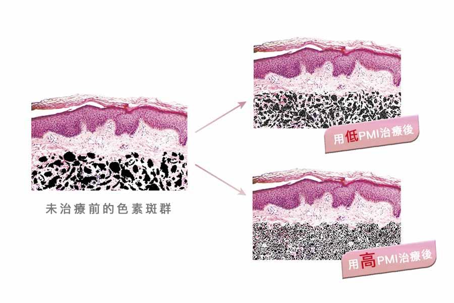 擔心傳統雷射清除痘疤、斑點、暗沉、黑色素、毛孔粗大、細紋效果有限嗎?順風美醫專業團隊提供新世代【皮秒雷射】改善效果up、治療時間及恢復期短。順風美醫診所,醫美推薦