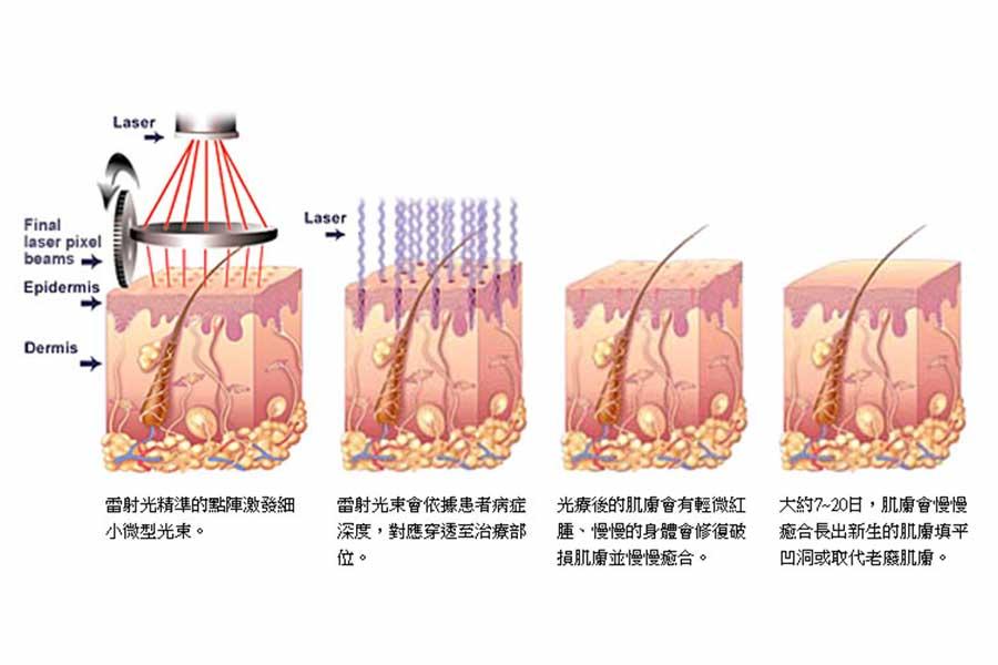 飛梭雷射以高科技奈米技術,最適合東方人的肌膚,反黑機率小,改善痘疤、毛孔粗大及皮膚凹洞等問題。順風美醫專業醫師團隊解決妳的問題。順風醫美診所,醫美推薦