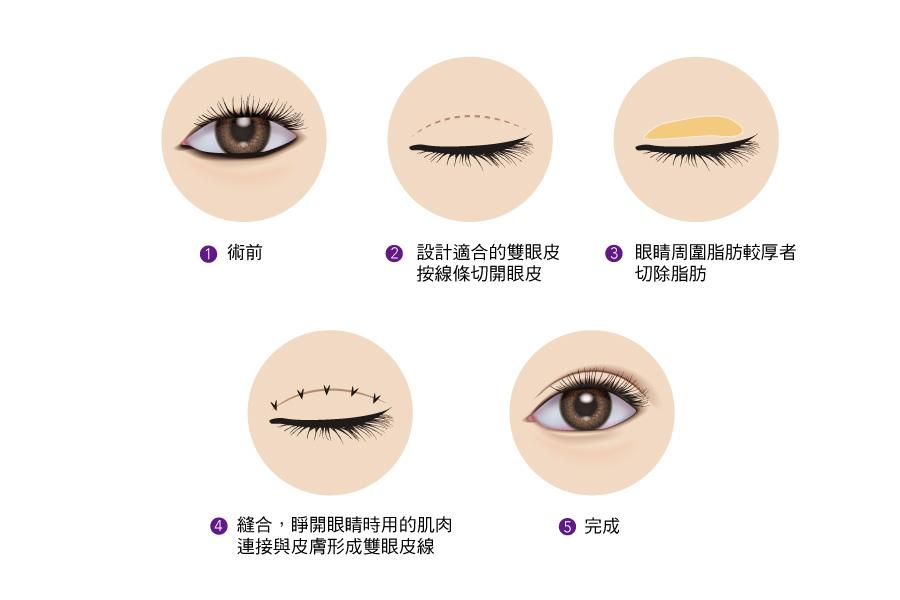 眼睛對了,笑容、臉蛋自然加分,想要歐美女神等級般深邃電眼,順風美醫專業醫美團隊讓妳擁有夢寐以求的迷人電眼。醫美推薦,雙眼皮,深邃,電眼